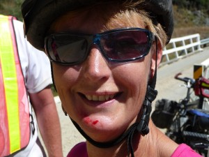 Judy's chin boo-boo after a crash on an uneven bridge.